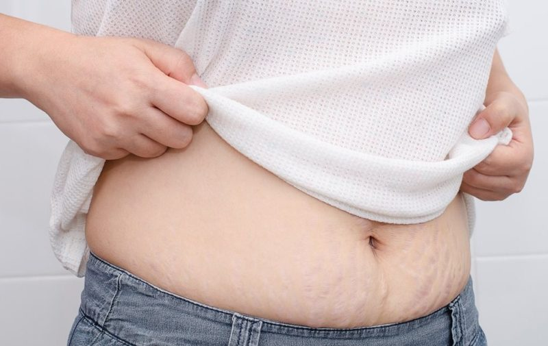 Method to Shed Belly Fat