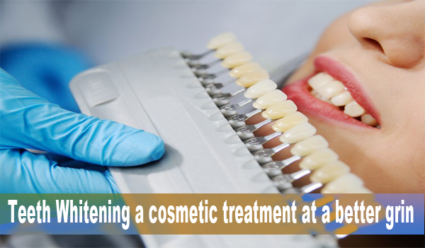 Teeth Whitening cosmetic treatment
