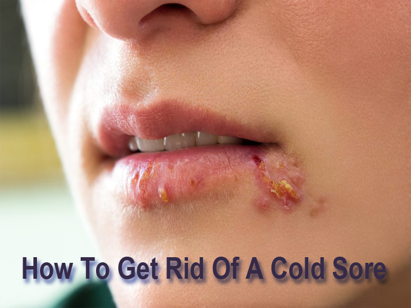 How To Get Rid Of A Cold Sore