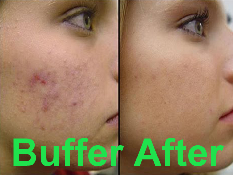 fish oil acne – can it really cure it