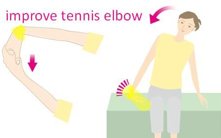improve tennis elbow