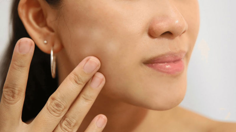 How To Get Rid Of White Spots On The Skin