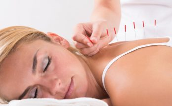 Acupuncture to Get Pregnant