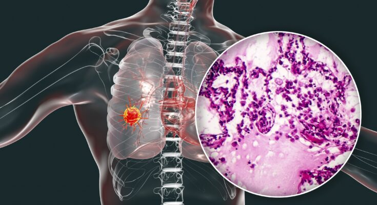 What Are The Signs That Lung Cancer Has Spread?