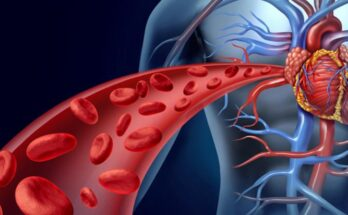 How to Find Out if There Are Blood Clots in the Blood Vessel