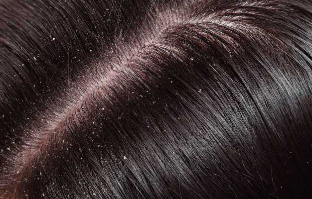 Scalp Sores and Scabs – Causes and Treatments